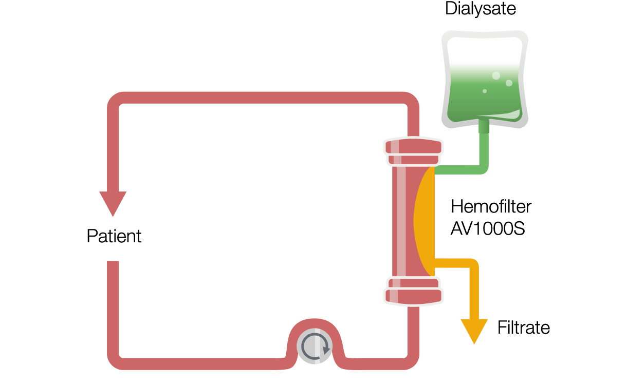 Continuous Veno-Venous Hemodialysis (CVVHD)