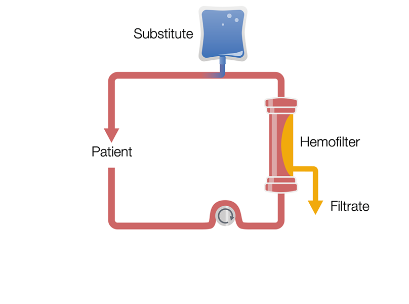 Continuous Veno-Venous Hemofiltration in post-dilution (Post-CVVH)
