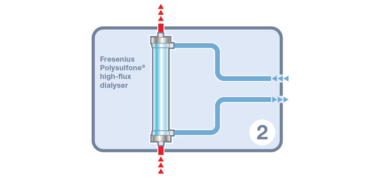 Diagram of dialysis therapy