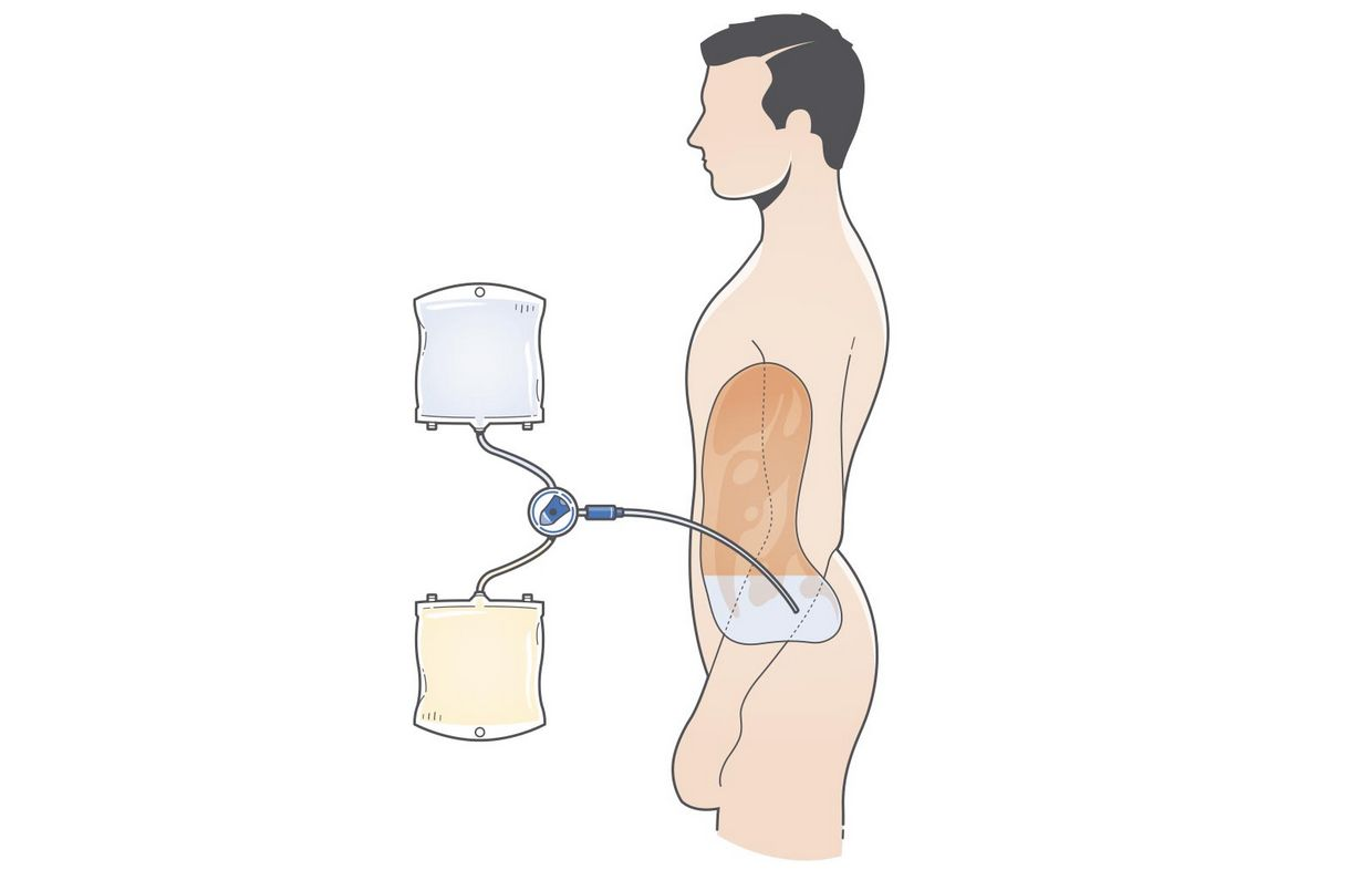 Drawing of peritoneal dialysis treatment