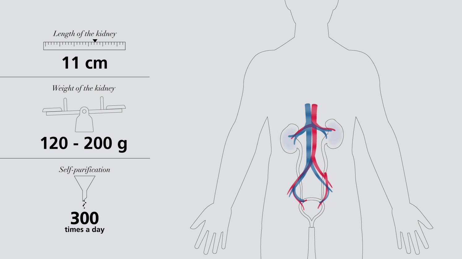 Understanding dialysis - Fresenius Medical Care